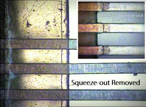 Laser Squeeze Out Removal